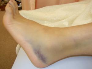 足首の捻挫 外観1