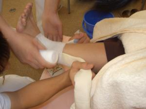 足首の捻挫の治療2