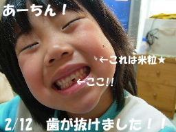 歯抜けちゃん!!.