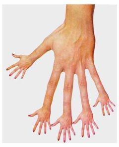 指から手が生えた画像