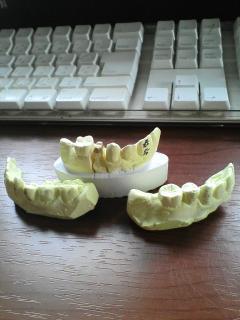 私の歯の記録