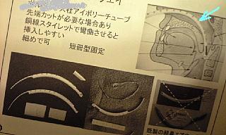 経鼻咽頭エアウェイ1