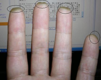 Finger_Tako.jpg