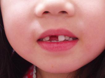 上の前歯が