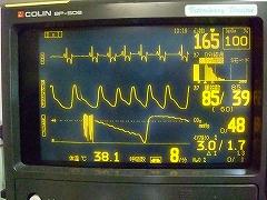 心電図・脈拍・心拍・呼吸数など