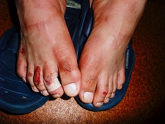 ボロボロの足の指