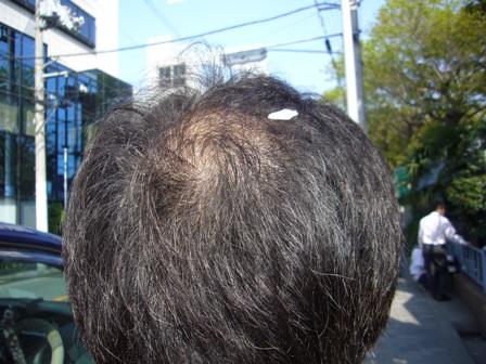 禿の頭に花びら