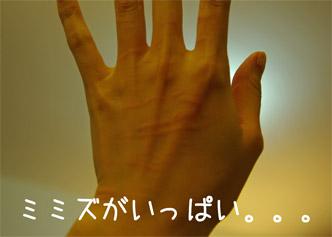 08.1.11ミミズ腫れ