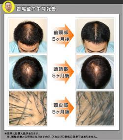 iwao_convert_20080917161310.jpg