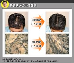 miya_convert_20080917161706.jpg